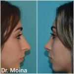 Rinoplastia, Antes y Después. Dr. Moina.