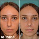 Rinoplastia, Antes y Después. Dr, Moina.