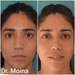 Rinoplastia, Resultados. Dr. Moina.