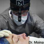 Dr. Daniel Moina Rinoplastia Experto